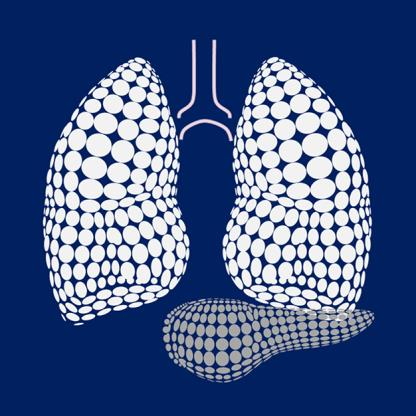Prevention of Lung Injury asociated with Acute Necrotizing Pancreatitis
